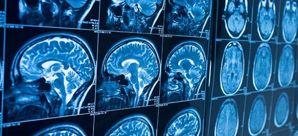 Künstliche Intelligenz – der Schlüssel zu besserer Medizin? | Healthcare-Experte Bart de Witte im Interview